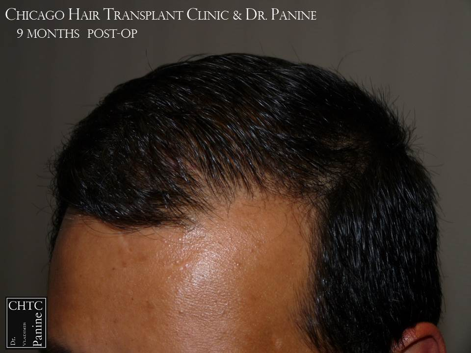 Propecia after hair transplant